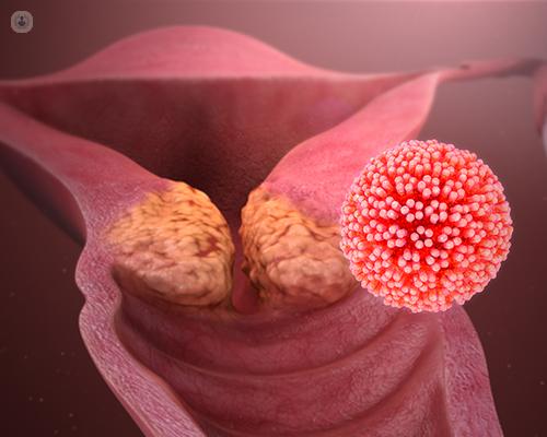 human papillomavirus( hpv)