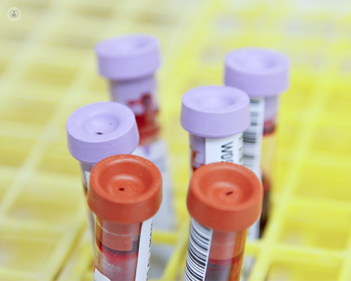 A group of test tubes containing blood. Blood tests are often used to diagnose electrolyte disorders.